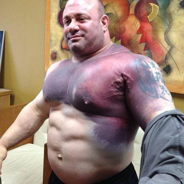 Scott Mendelson After He Tore His Pec Trying For The World Record